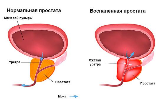 Самые эффективные народные средства для лечения простатита