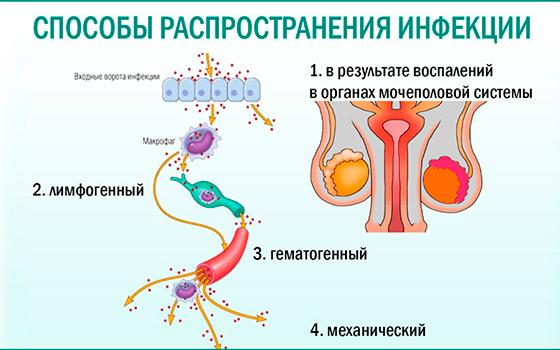Симптомы и методы лечения гнойного простатита