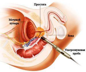 Симтомы обострения простатита у мужчин: как снять в домашних условиях, причины и лечение ЛечениеБолезней.com