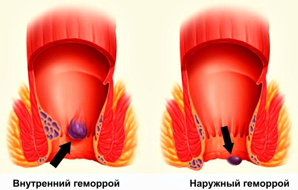 Синтомициновая мазь при геморрое