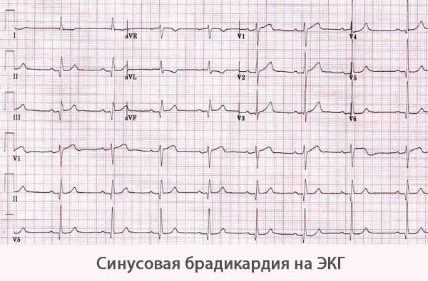 Синусовая брадикардия на электрокардиограмме (ЭКГ)?