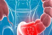 Сколько живут после операции при раке прямой кишки