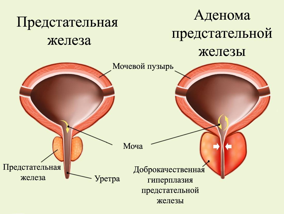 Форум лечение простатита и аденомы предстательной железы удаления простатита
