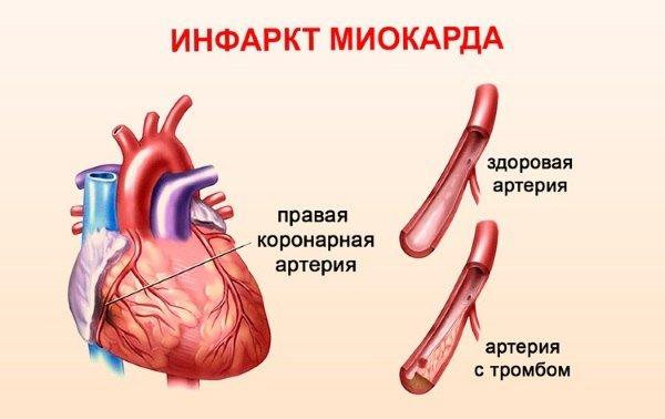Трансмуральный инфаркт миокарда: осложнения и прогноз на лечение