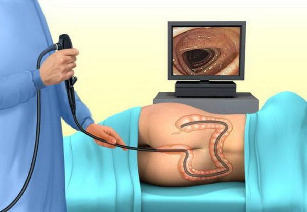Урчание в животе и жидкий стул: причины и лечение