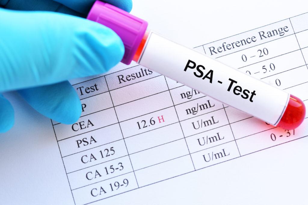 Уровень ПСА после радикальной простатэктомии: нормальные значения, отклонения