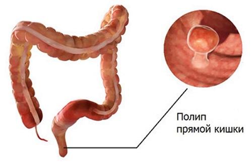14 возможных симптомов кандидоза кишечника