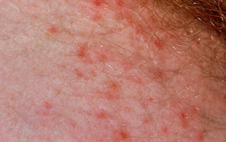 Аллергия на половых органах: как проявляется и что вызывает.