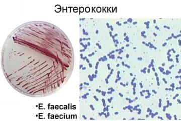 Анализ кала на кишечную группу: как сдавать, сколько времени делается и что в него входит