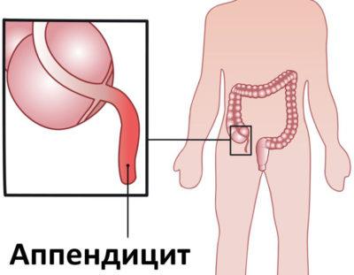 Аппендицит при беременности: симптомы и первый признаки, возможные последствия