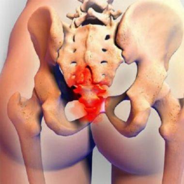 Боли в пояснице при геморрое: причины проявления и методы лечения