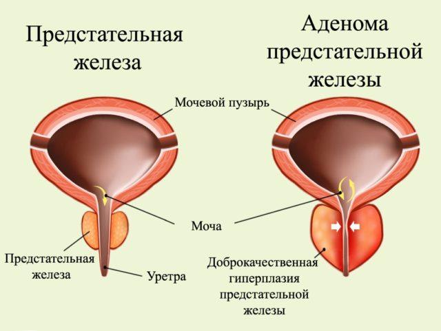 Что такое гиперплазия предстательной железы?