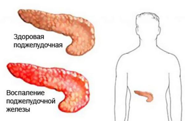 Что такое панкреатит и чем он опасен