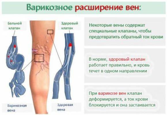 Что такое варикозное расширение вен на ногах и почему оно появляется