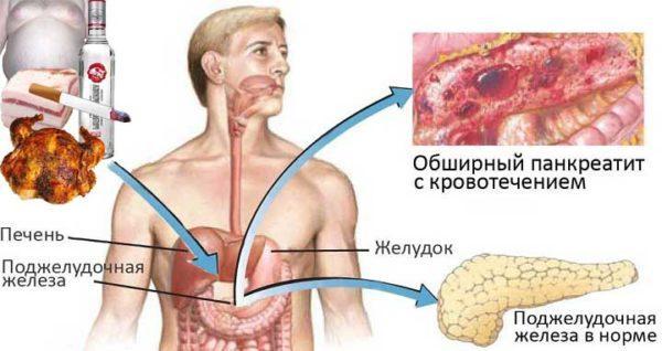Диета при остром панкреатите у взрослых