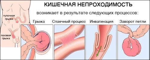 Дискинезия толстой кишки по гипертоническому, гипомоторному и смешанному типу, лечение и симптомы