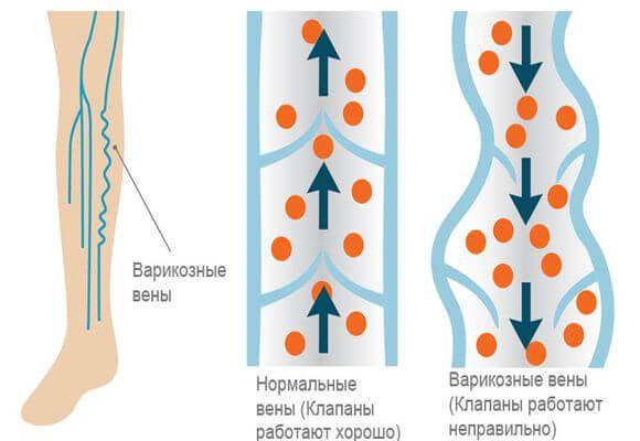 Эффективное лечение ретикулярного варикоза народными средствами