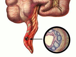 Флегмонозный аппендицит: что это такое, причины и симптомы, диета и восстановление после операции