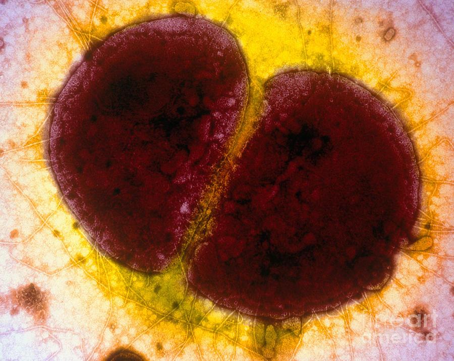 Гонококки в мазке: почему обнаруживаются и как лечить.