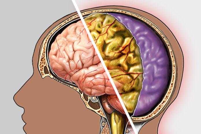 Как распознать энцефалитный менингит?