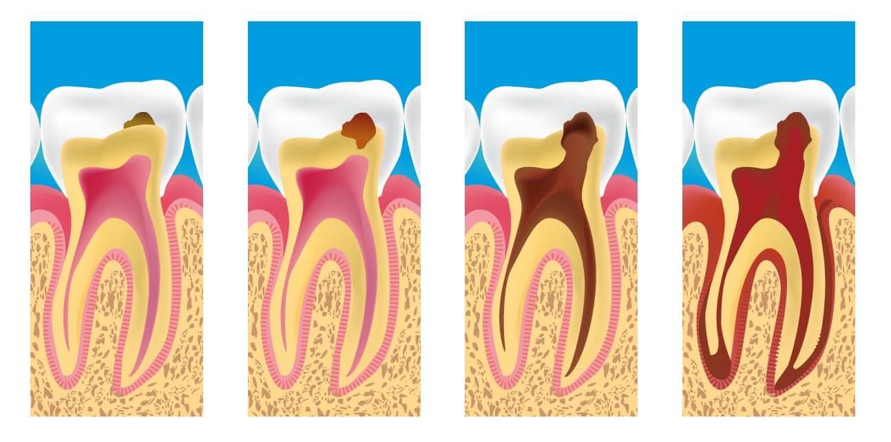 Как уменьшить чувствительность зубов — советы стоматологов