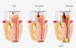 Когда применяют антибиотик при зубном воспалении