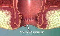 Кровь в кале у взрослого человека: возможные причины и лечение