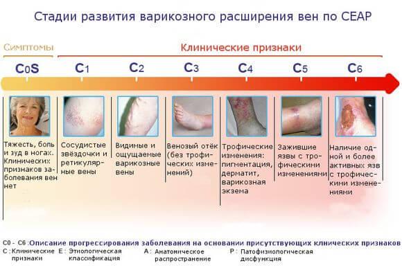 Лечение варикозного расширения вен нижних конечностей народными средствами