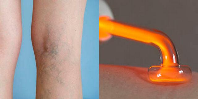 Лечение варикозного расширения вен прибором Дарсонваль