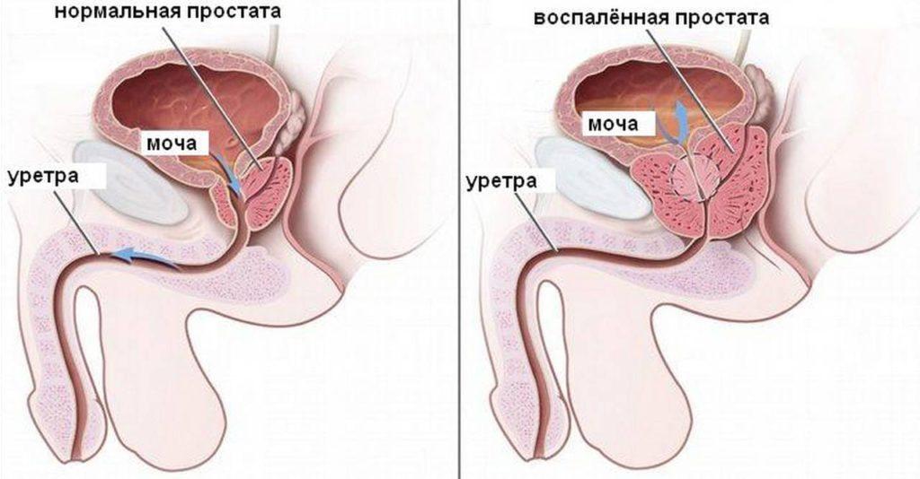 Лучшие методики лечения простатита в домашних условиях