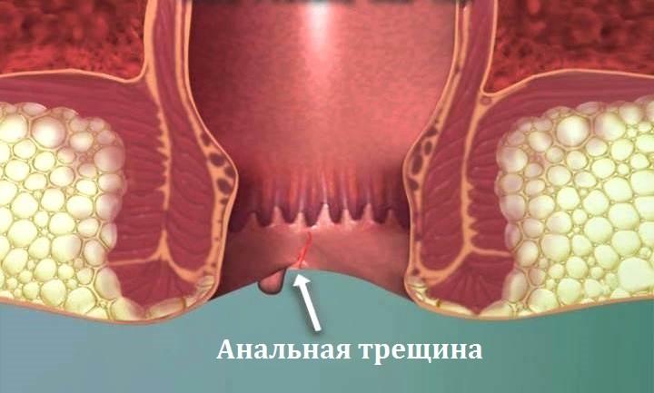 Мази от трещин в заднем проходе: названия, как выбрать и мазать для лечения