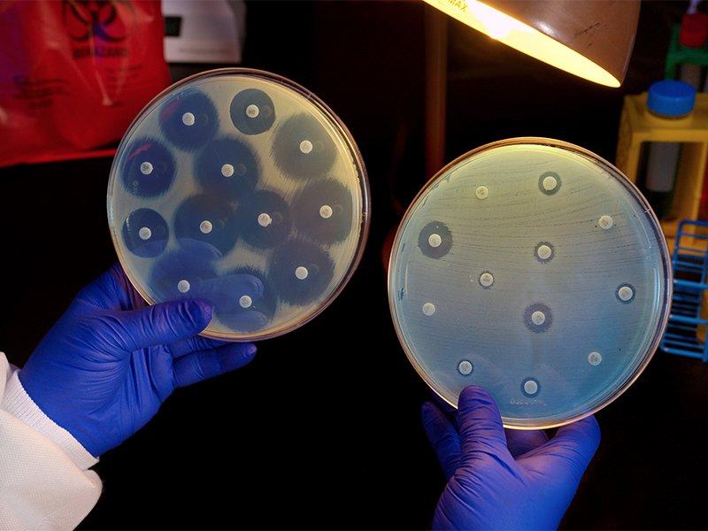 Мазок после лечения: когда и на какие инфекции берут.
