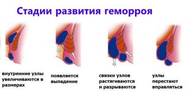 Методы лечения острого и хронического геморроя 3 степени
