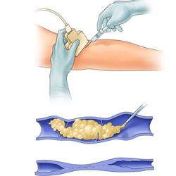 Новый препарат Варитена для склеротерапии крупных вен