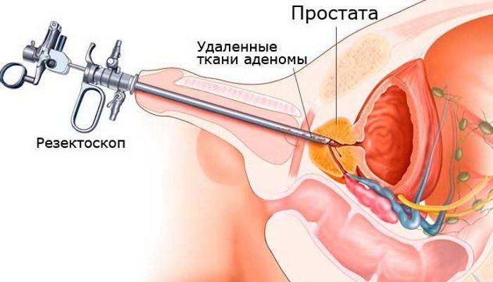 Операция по удалению аденомы простаты: возможные последствия
