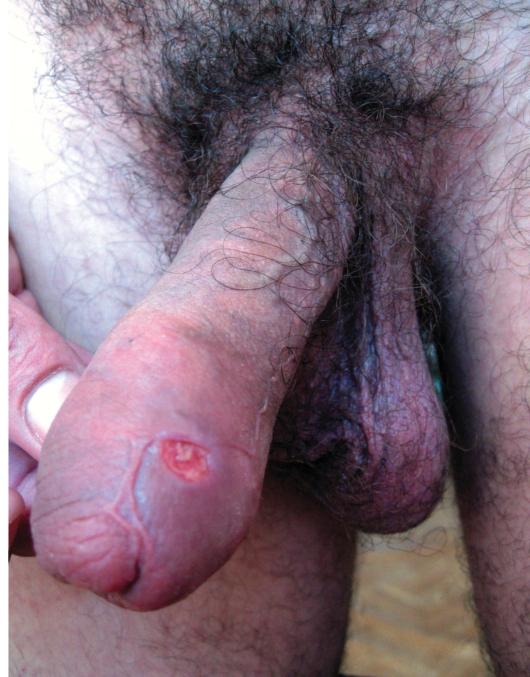 Отеки при сифилисе: почему возникают и как проявляются.