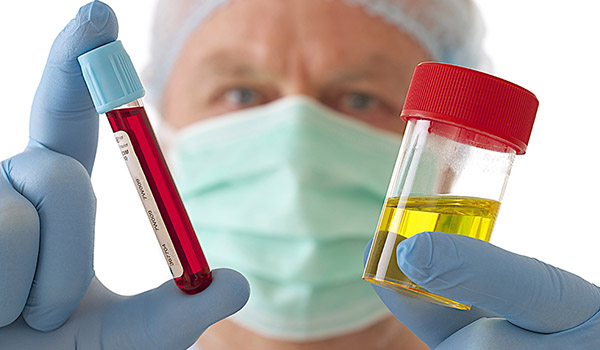 Почему бывает зуд в заднем проходе после антибиотиков и как его лечить