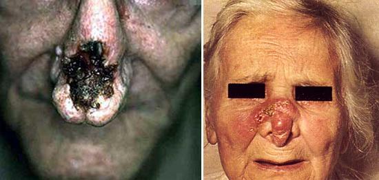 Последствия сифилиса после лечения: когда и какие возможны.