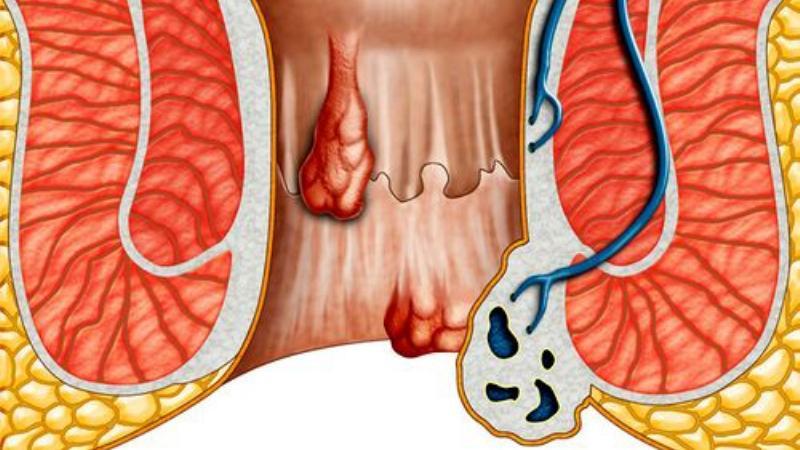 Препарат Флебодиа 600 при лечении геморроя: инструкция и отзывы