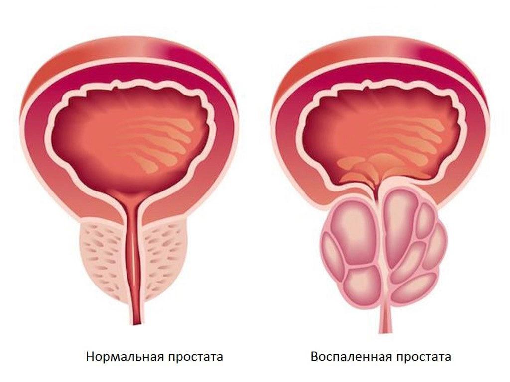 Прибор для лечения простатита: показания, противопоказания, виды аппартов