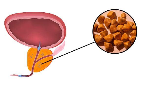 Камень простатите влияние сауны на простатита