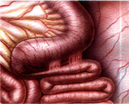 Причины и лечение спаечной кишечной непроходимости
