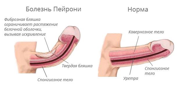 Причины спонтанной эректильной дисфункции