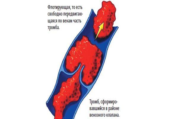 Причины возникновения флотирующего тромба