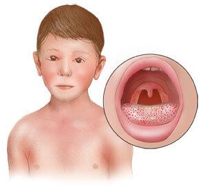 Признаки скарлатины у детей и требуемое лечение во время болезни