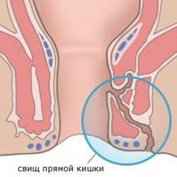 Проктит (воспаление прямой кишки): симптомы, лечение у взрослых и детей, диета