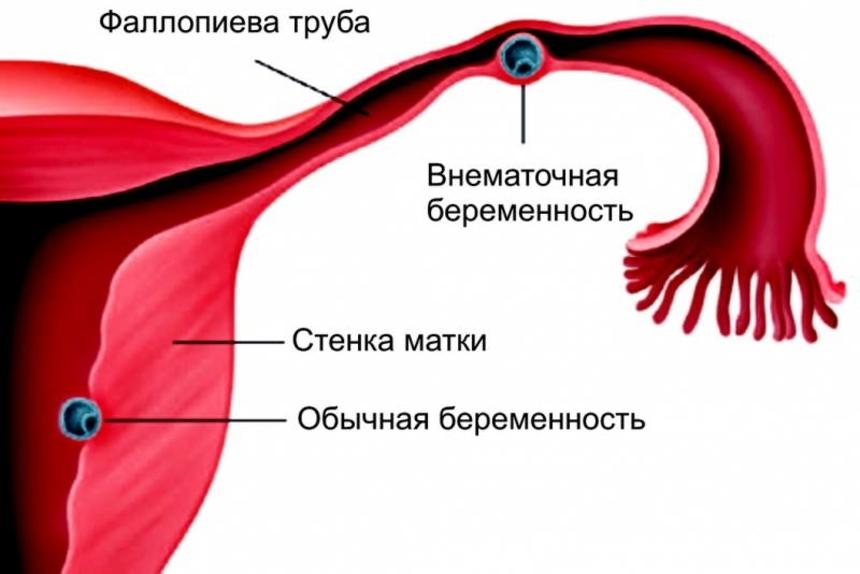 Простатит и беременность: влияние заболевания на зачатие и здоровье ребенка