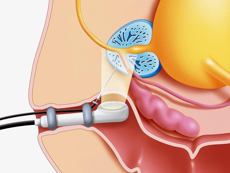 Рак предстательной железы 3 стадии: симптомы, лечение, прогноз