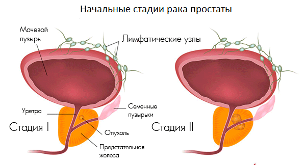 Рак простаты 2 степени: симптомы, лечение, продолжительность жизни