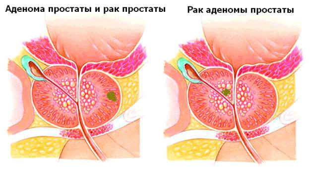 Рак простаты и аденома: отличия, особенности лечения